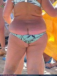 Large Woman in Small Bikini