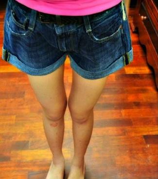 thigh gap3